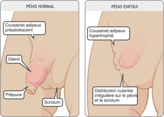 Insensibilitatea penisului sau sindromul 'Death Grip'